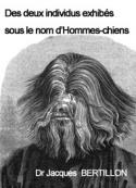 Jacques Bertillon: Des deux individus exhibés sous le nom d'Hommes-chiens